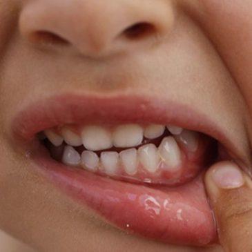 Гингивит: какие симптомы заболевания у детей, как лечить воспаленные десна в домашних условиях?