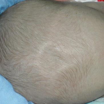 Причины впалого родничка у грудничка: почему он западает, опасно ли это?