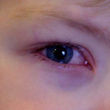 Как лечить вирусный конъюнктивит у ребенка: симптомы заболевания, медпрепараты и профилактика