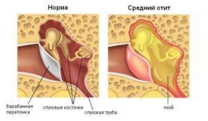 Как снять ушную боль у ребенка