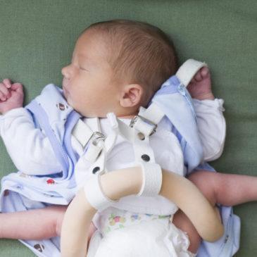 Дисплазия тазобедренных суставов у новорожденных и детей до года: массаж и комплекс упражнений ЛФК