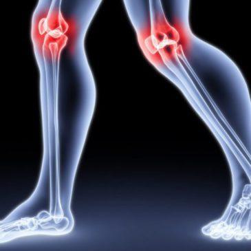 Специфика артрита у детей: симптомы и причины ювенильного ревматоидного и других видов, диагностика, лечение и прогноз