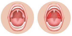 Красное горло у ребенка: чем лечить в домашних условиях и как быстро устранить боль при глотании?