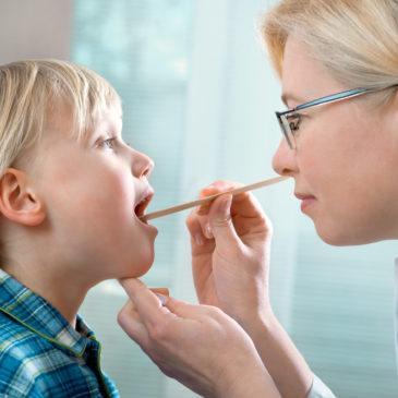 Причины и симптомы грибковой ангины у детей, лечение инфекции, фото пораженного горла