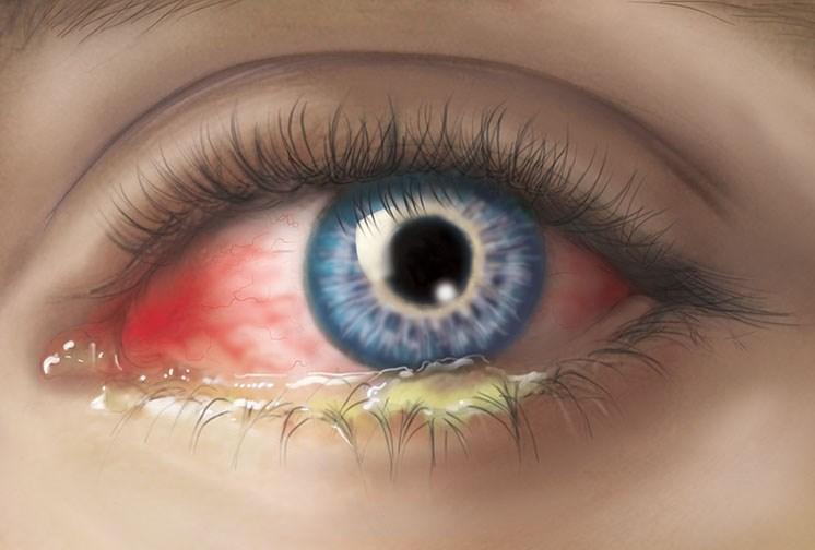 Закис глаз у ребенка