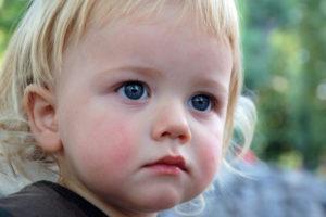 Как выглядит сыпь при аллергии у детей