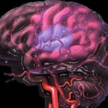 Симптомы и лечение ишемии головного мозга у новорожденных детей: аноксическое поражение и гипоксические изменения