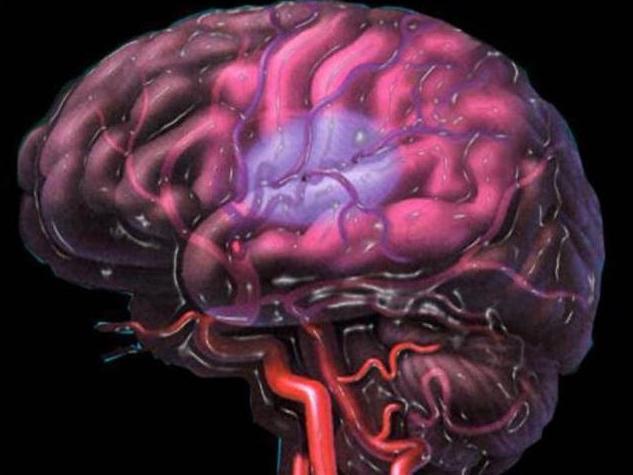 Гипоксически ишемическое поражение ЦНС: особенности заболевания
