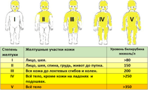 Признаки желтушки у новорожденного