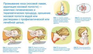 Как приготовить соляной раствор для промывания носа