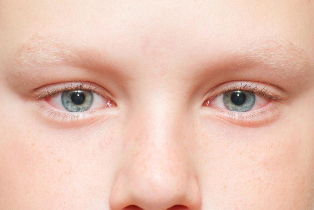 Почему гноятся глаза у ребенка: чем лечить дома? Гноятся глаза у ребенка: лечение народными средствами