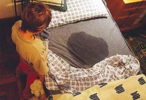 Как делается микционная цистография мочевого пузыря у детей?