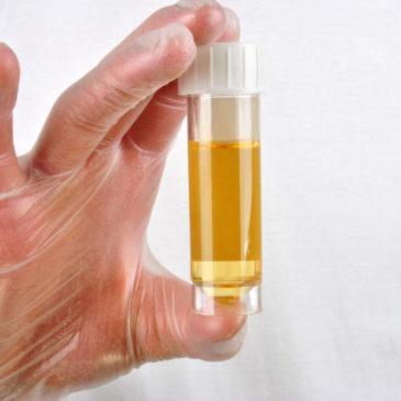 Моча у ребенка стала бесцветной и прозрачной, желтой или белой: что это значит и почему урина меняет цвет?