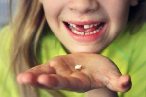 Замена зубов у детей на постоянные