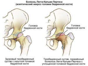 Болезнь Пертеса симптомы и лечение тазобедренного сустава у детей