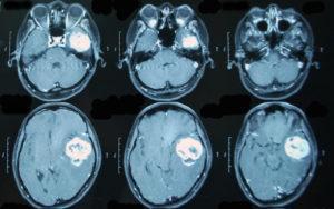 Описанный случай нейробластомы у подростка. Симптомы и стадии нейробластомы у детей, причины возникновения заболевания, прогноз