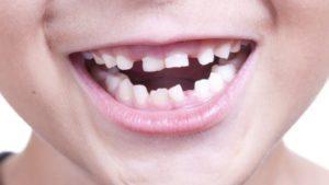 Лезут коренные зубы у ребенка симптомы – Здоровье полости рта