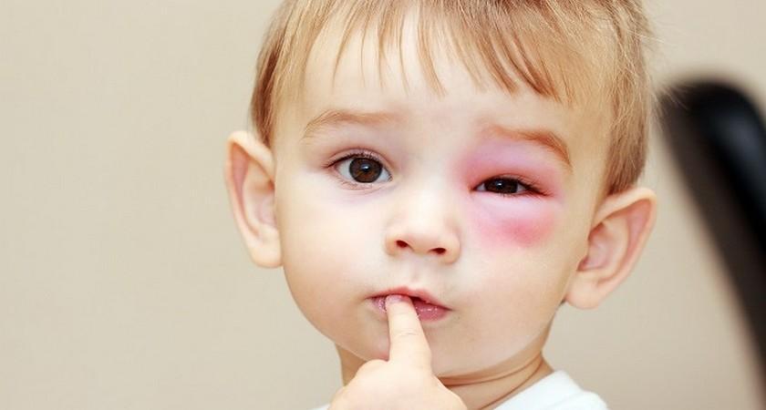 Фото укусов комаров у ребенка