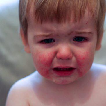 Синдром Кавасаки у ребенка: причины, симптомы и методы лечения болезни с фото