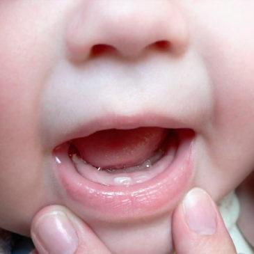 Особенности стоматита у детей до 1 года: первые признаки и общие симптомы с фото, причины, лечение и профилактика