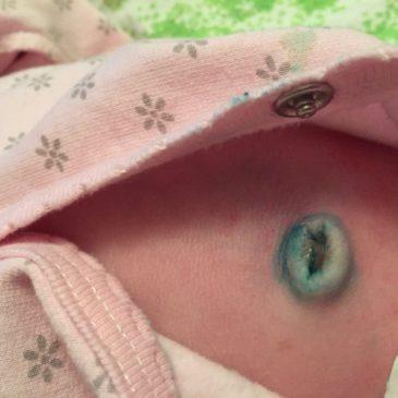 Причины фунгуса пупка у новорожденных, симптомы с фото, лечение и последствия