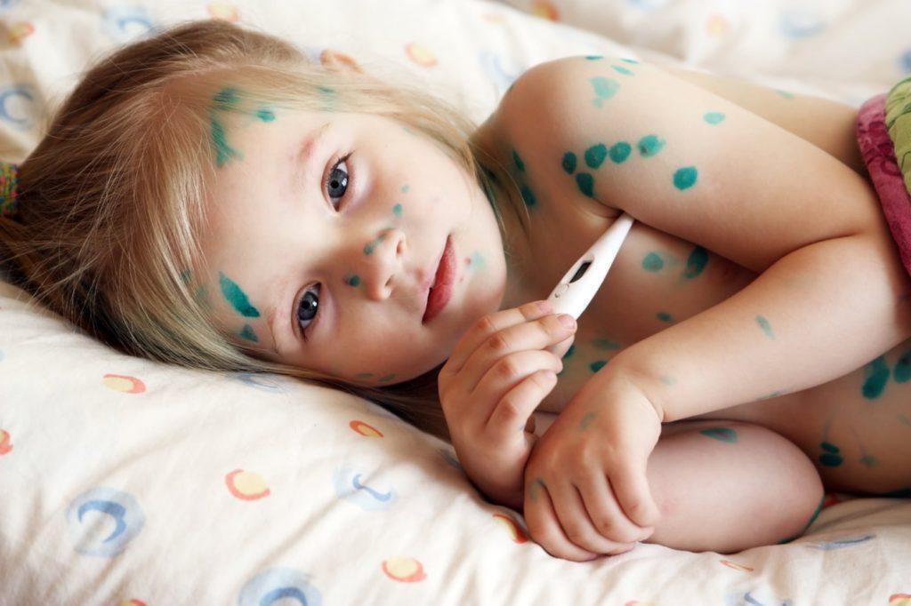 Чем обработать ветрянку во рту у ребенка
