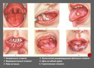 Стоматит на языке у ребнка причины и методы терапии