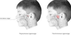 Хронический аденоидит у детей лечение