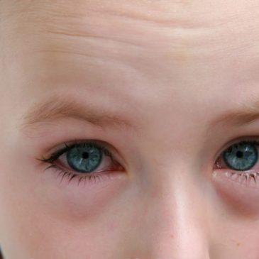 Особенности гнойного конъюнктивита у детей: фото, лечение острой и хронической форм заболевания глаз, профилактика
