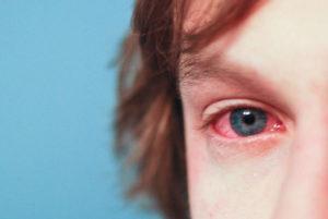 Аденовирусная инфекция у детей 🌡: симптомы и лечение, профилактика заболевания