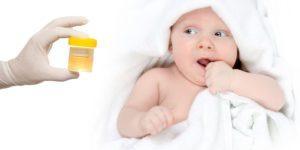 Что означает слизь в анализе мочи у ребенка и грудничка: причины