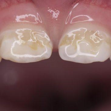 Причины и лечение бутылочного кариеса у детей, фото пораженных зубов, мнение Комаровского