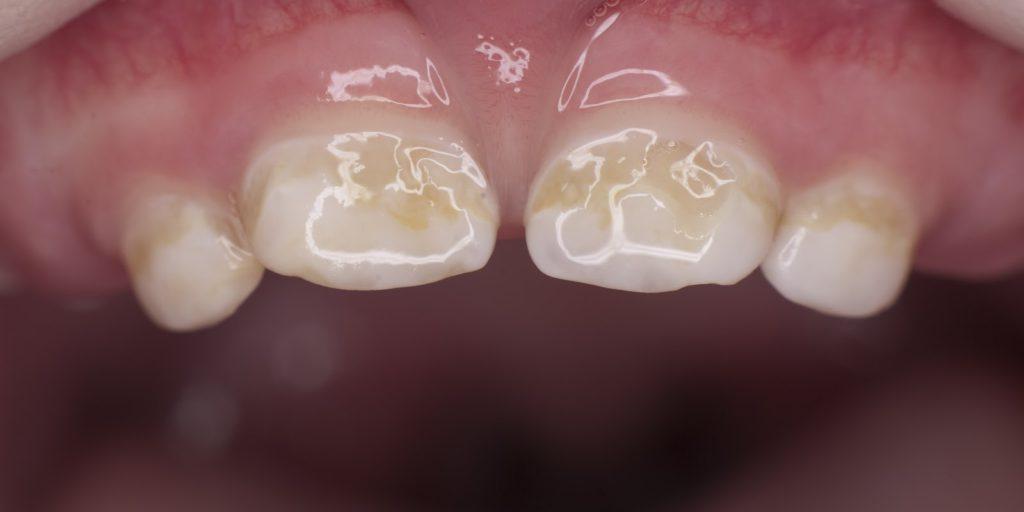 Кариес молочных зубов у детей раннего возраста