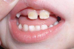 Черные полоски на зубах у ребенка