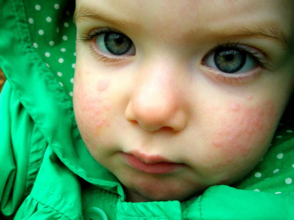 Почему появляется сыпь во рту у ребенка и температура, и как ее лечить?