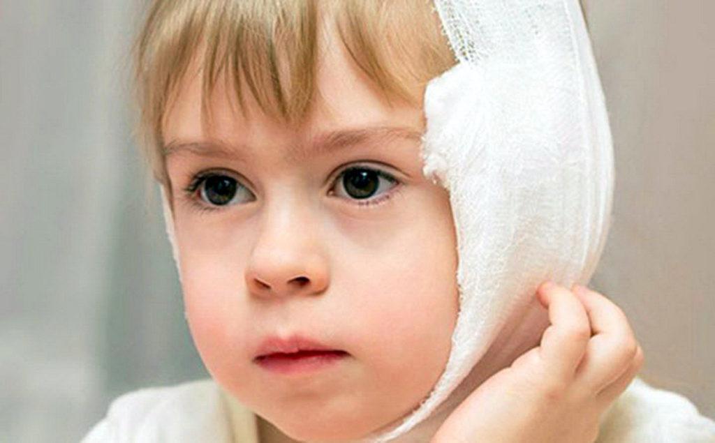 Какой компресс на ухо при отите можно делать ребенку и взрослому