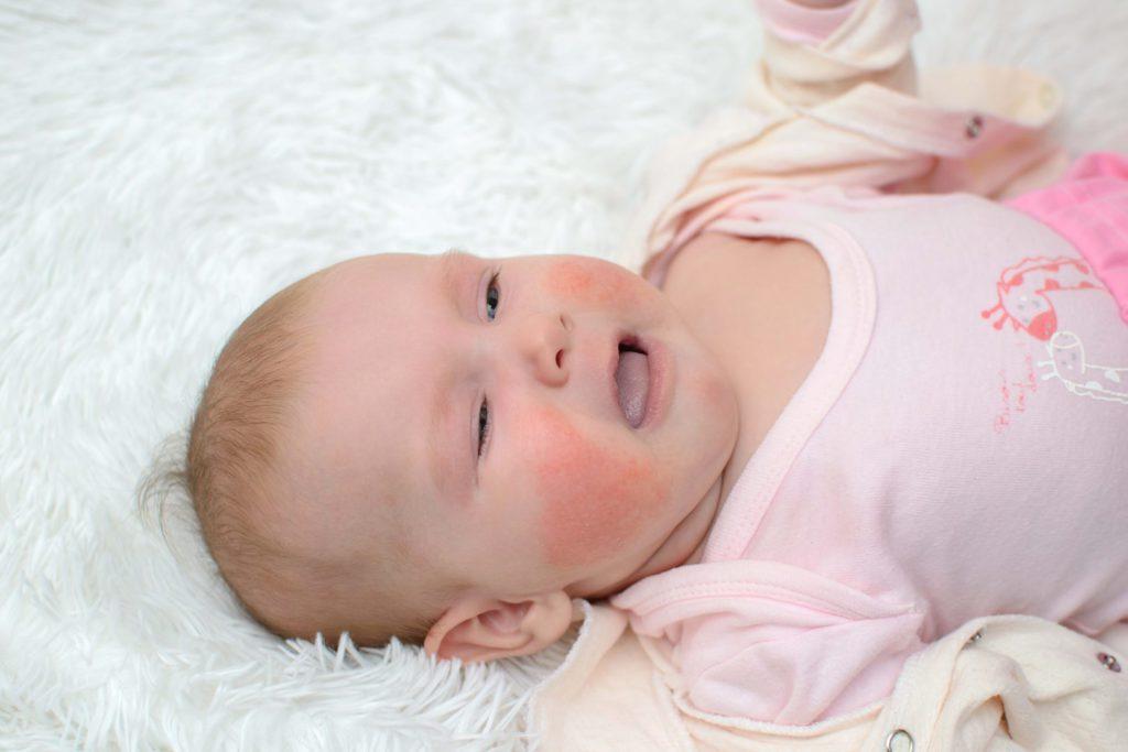 Шершавые пятна на теле у ребенка: как лечить сухие красные или розовые высыпания на коже?