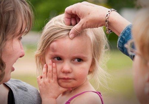 Шишка на лбу у ребенка что делать