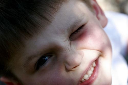 Можно ли вылечить нервный тик у ребенка
