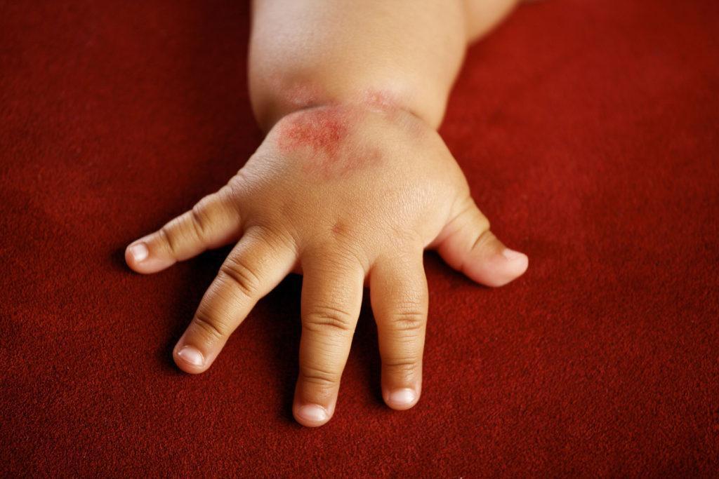 Контактный дерматит у грудничка фото
