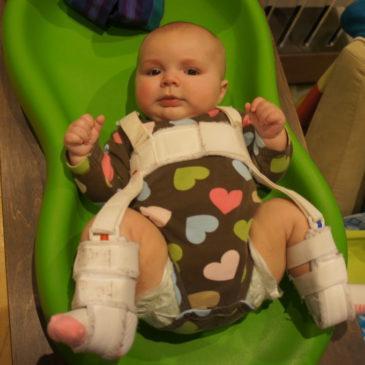 Применение широкого пеленания для новорожденного при дисплазии тазобедренных суставов: пошаговая техника выполнения