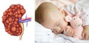 Повышенные эритроциты у ребенка в моче: о чем это говорит? Причины повышенных эритроцитов в моче у детей