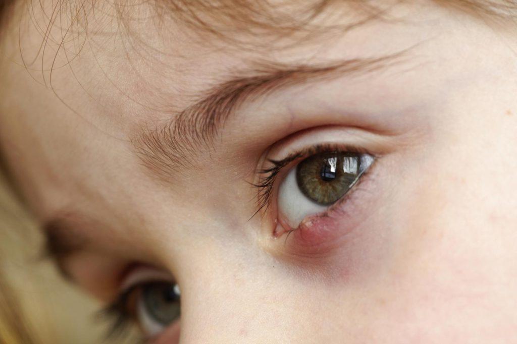 Отек глаз у ребенка: причины, методы лечения, что делать для профилактики неприятного симптома на верхнем веке и под глазами