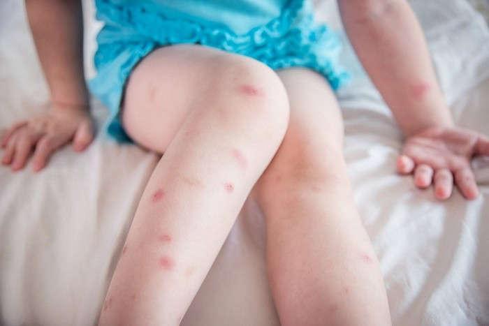 Ребенка покусали комары: что делать и чем помазать