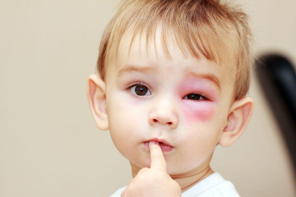 Почему укусы комаров опухают. Как лечить укусы возле глаз