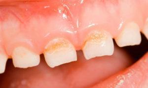 Зубы и анализ крови комаровский