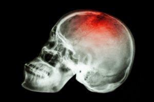 Линейный перелом черепа у грудничка лечение и последствия