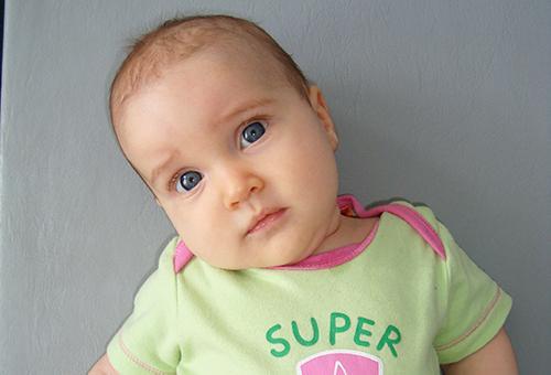 Кривошея у новорожденных причины симптомы и лечение