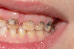 Пульпит зуба картинки