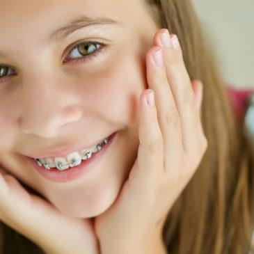Зачем ставить брекет-систему детям, в каком возрасте можно это делать и сколько стоит процедура?